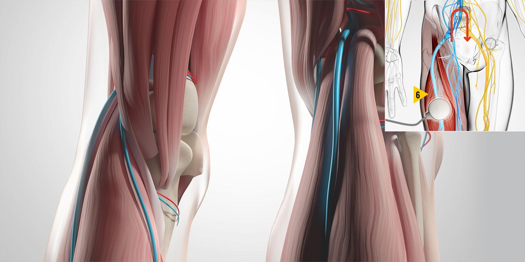 Vibra fase 6 - Muscolo