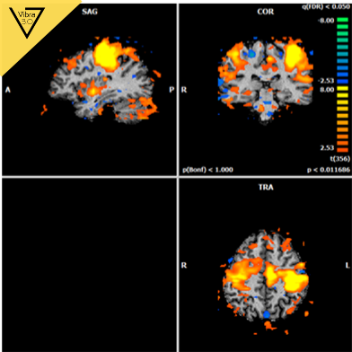las vibraciones asociadas con el movimiento activan el cerebelo