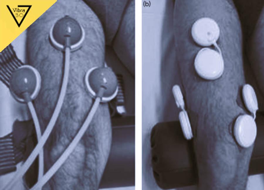 Trial di confronto tra riabilitazione tradizionale e riabilitazione associata a vibrazione nel paziente protesizzato di ginocchio